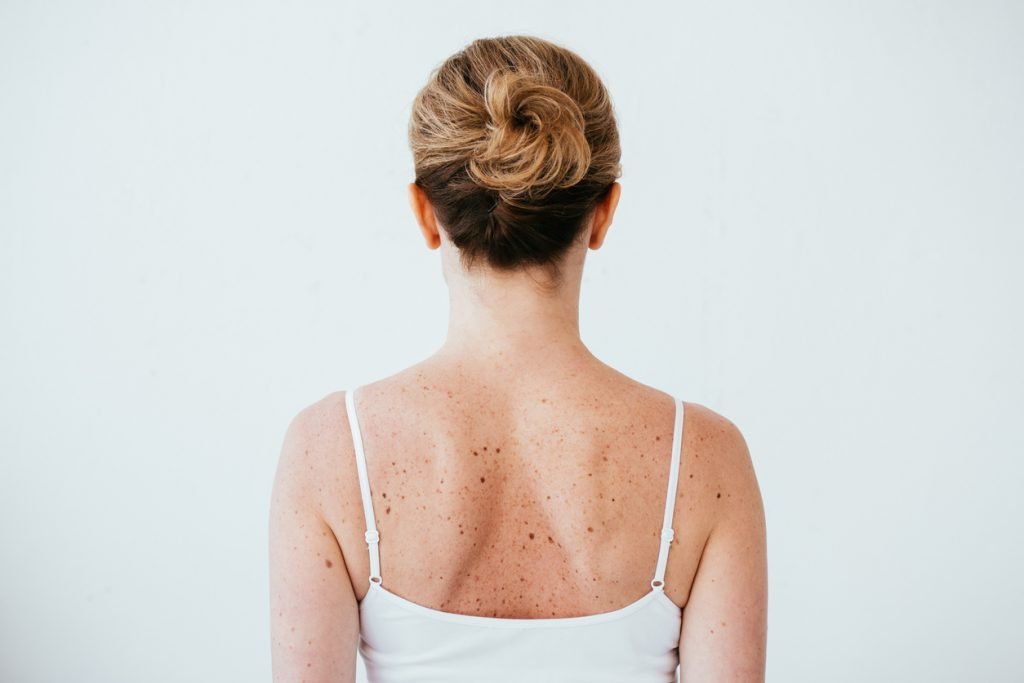Woman With Moles On Back